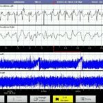 Mastering aEEG Interpretation